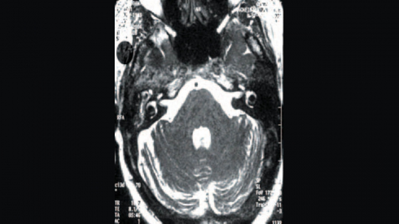 Spontaneous cerebrospinal fluid otorrhoea presenting as otitis externa